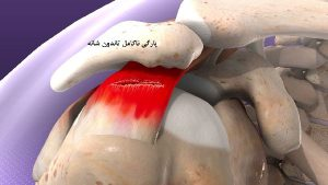 آسیب تاندون شانه - 2 300x169 - آسیب تاندون شانه