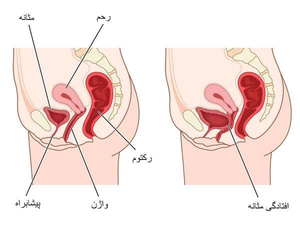 اختلالات عضلات کف لگن  اختلالات عضلات کف لگن چیست؟ - 980717 3 - اختلالات عضلات کف لگن چیست؟