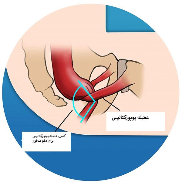 اختلالات عضلات کف لگن  اختلالات عضلات کف لگن چیست؟ اختلالات عضلات کف لگن چیست؟ 980717 4
