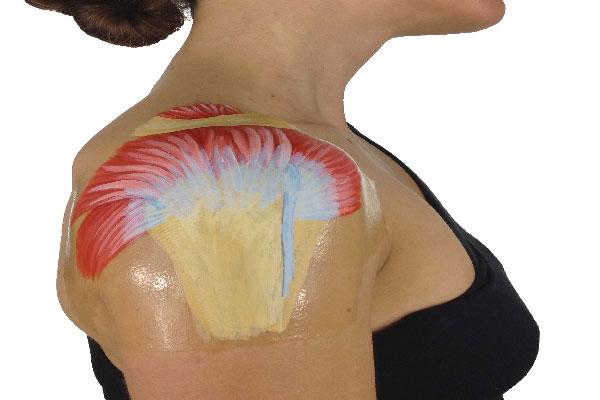 درد شانه آسیب تاندون شانه آسیب تاندون شانه 980809 2 low size