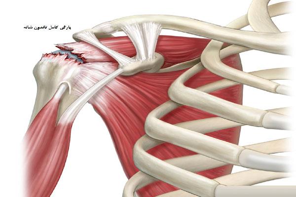 شونه درد آسیب تاندون شانه - 980809 3 low size - آسیب تاندون شانه