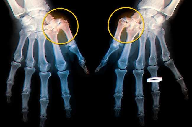 علل دست درد - 980911 1 - علل دست درد