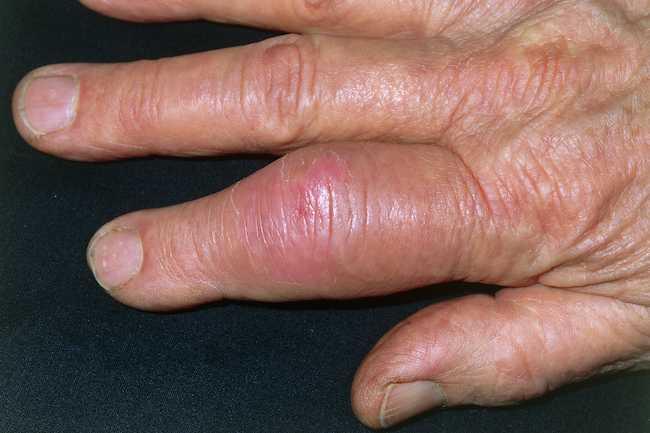 علل دست درد - 980911 13 - علل دست درد