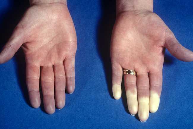 علل دست درد - 980911 14 - علل دست درد