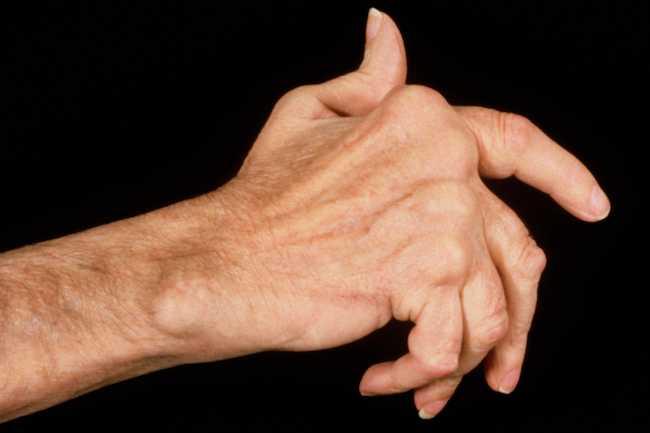 علل دست درد - 980911 2 - علل دست درد