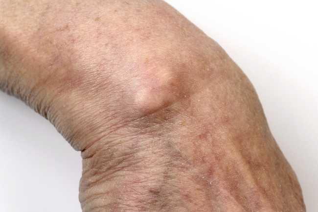 علل دست درد - 980911 7 - علل دست درد