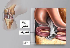 درد مفصل زانو تعویض مفصل زانو ؟ تعویض مفصل زانو ؟ 1 300x204