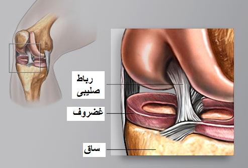 درد مفصل زانو