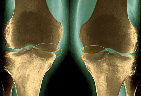 درد مفصل زانوی پا