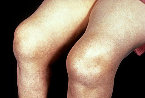 درد مفصل زانو در بارداری