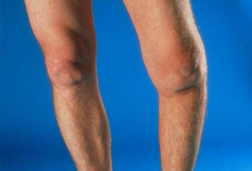 درد مفصل زانو پا