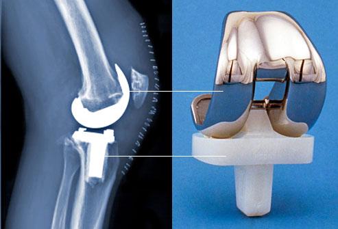 درد مفصل زانو و لگن
