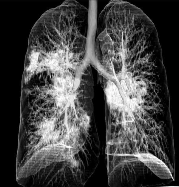 فیزیوتراپی ویروس کرونا تمرینات تنفسی ویروس کرونا تمرینات تنفسی ویروس کرونا pics 1